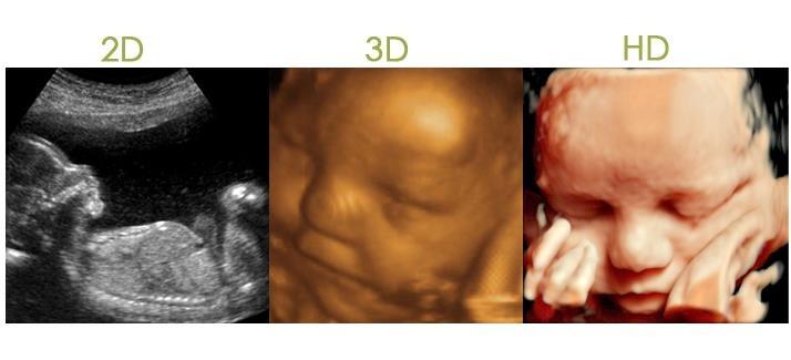 Ultrasonido 4D HD live y Doppler color