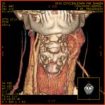 Tomografía Multicorte