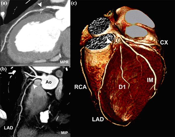 Resonancia magnetica cardiovascular corazón
