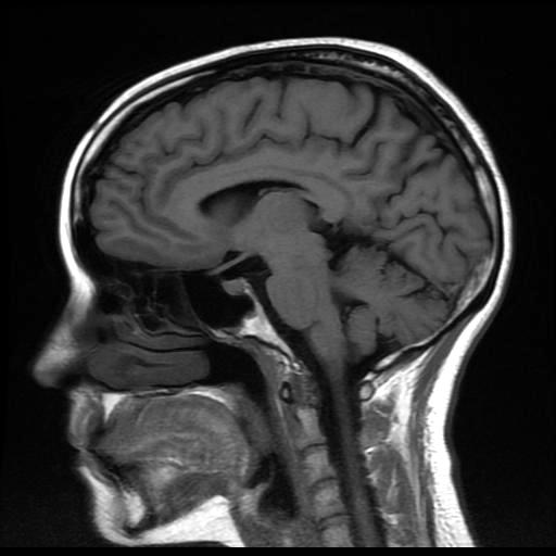 Neuroradiología, Guadalajara Jalisco México