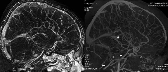 Trombosis venosa cerebral diagnostico
