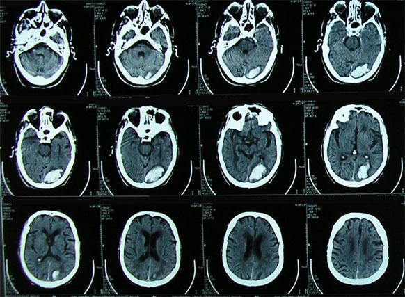 Tomografía Computada TAC en cabeza y cuello