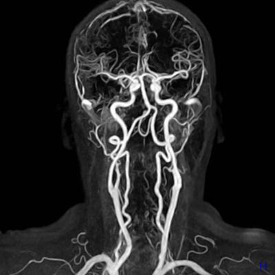 Resonancia magnética de cráneo