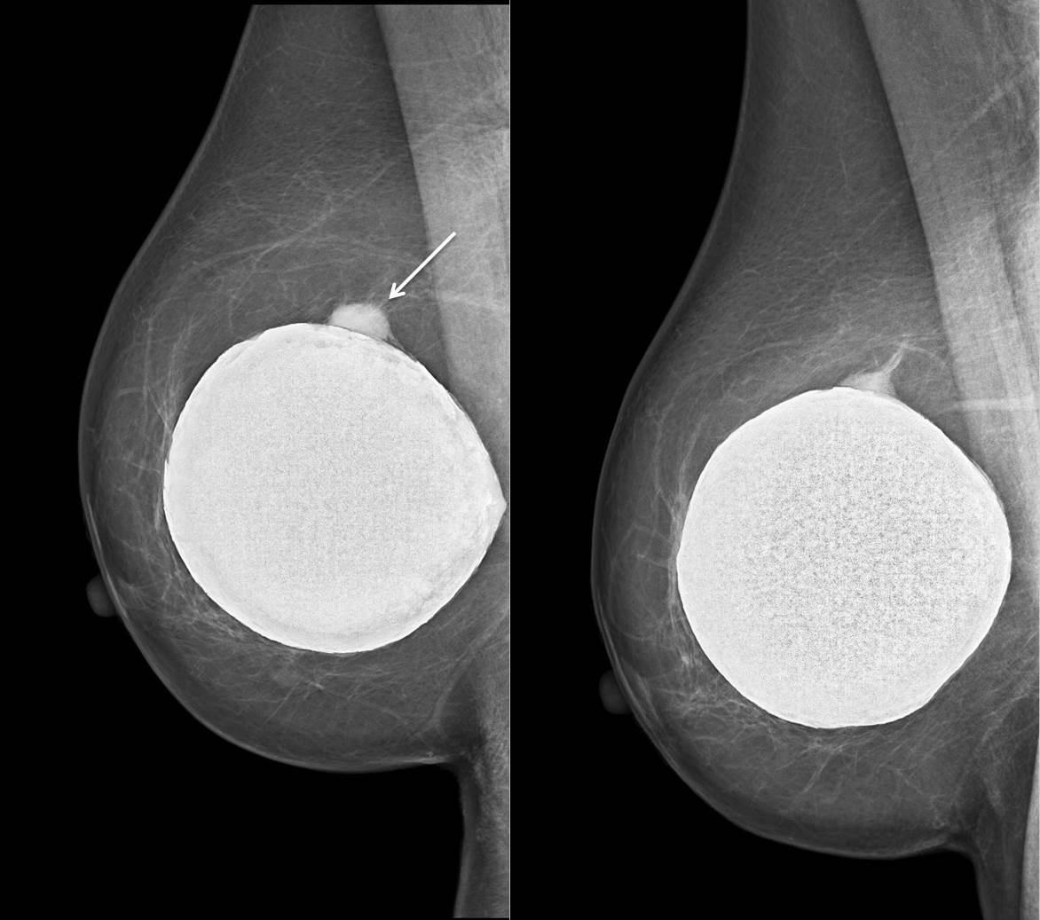 Los implantes de seno y la detección temprana del cáncer