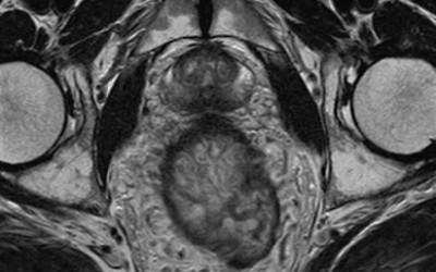 Resonancia magnética de pelvis
