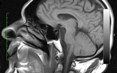 Accidente cerebrovascular (ACV) hemorrágico