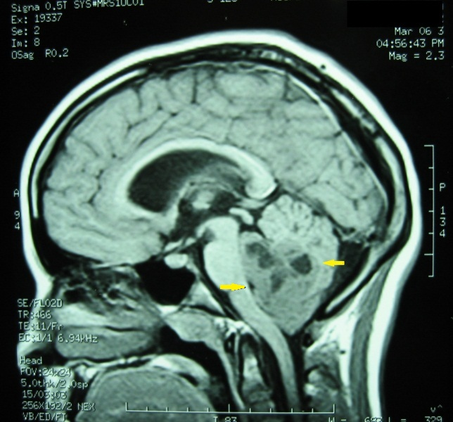 Neuroblastoma cáncer infantil