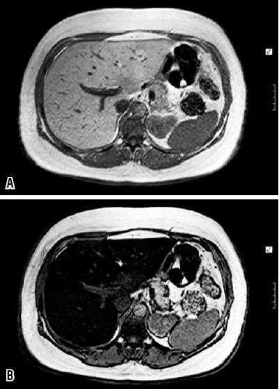 Hígado graso y fibrosis hepática