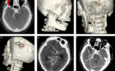 Diferencia entre Resonancia y Tomografía