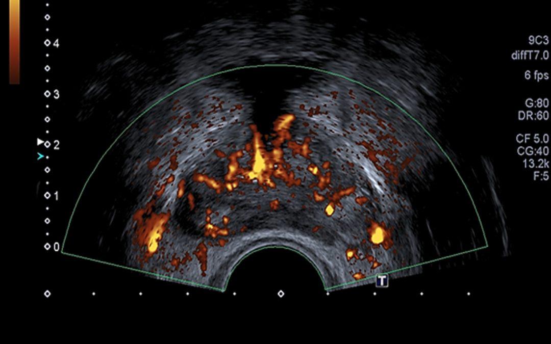 Ultrasonido de próstata