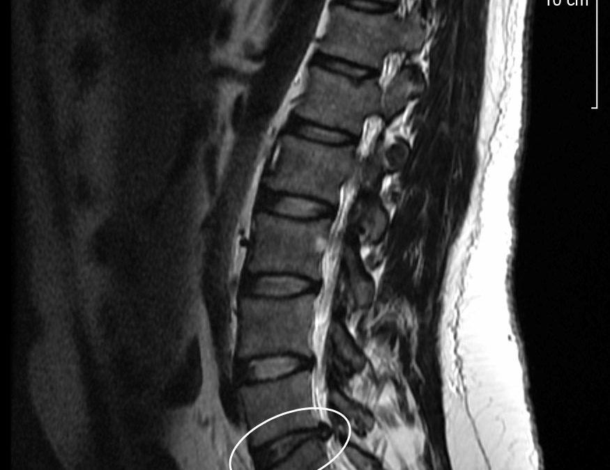 Resonancia magnética en la región lumbar