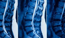 Resonancia magnética lumbar