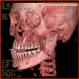 Fractura de mandíbula