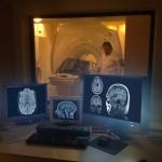 Resonancia magnética con anestesia