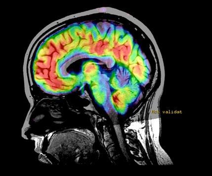 Imágenes por RM para monitorizar la esclerosis múltiple