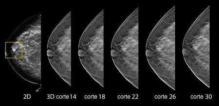 Resultado de imagen para tomosíntesis digital