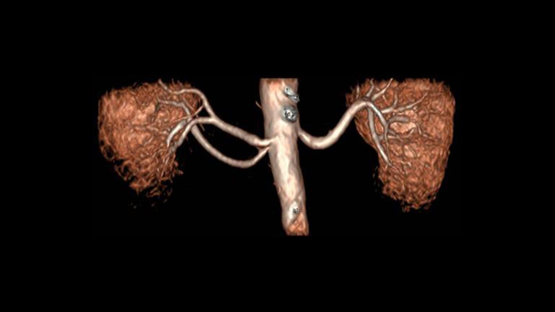 Angiografía por RM sin contraste en patologías renales