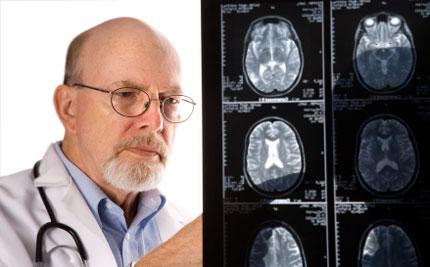 Derrame cerebral: reconoce sus síntomas