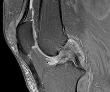 Resonancia magnética de la rodilla