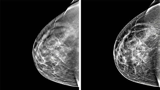 ¿El ciclo menstrual afectar los resultados de la mamografía?