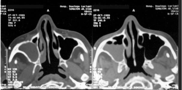 Tomografía computarizada de los senos paranasales