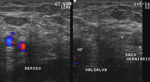 Diagnóstico de hernia inguinal
