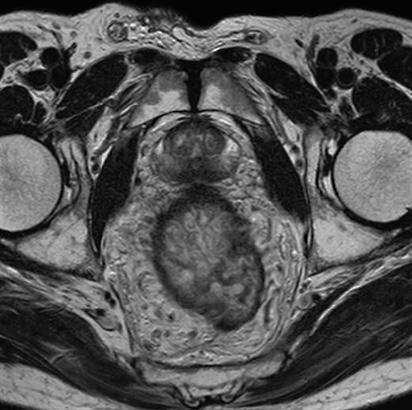 preparación para la próstata resonancia magnética
