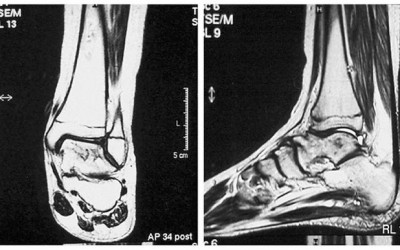 Disgnóstico de osteomielitis