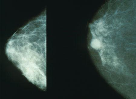 No todo cáncer de mama necesita quimioterapia