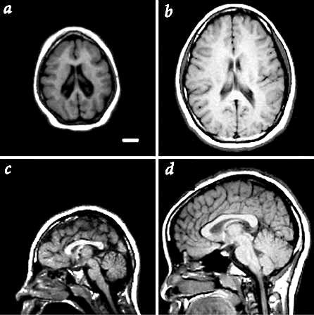 ¿Qué es y que causa la microcefalia?