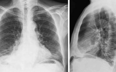 Importancia de la radiografía de Torax
