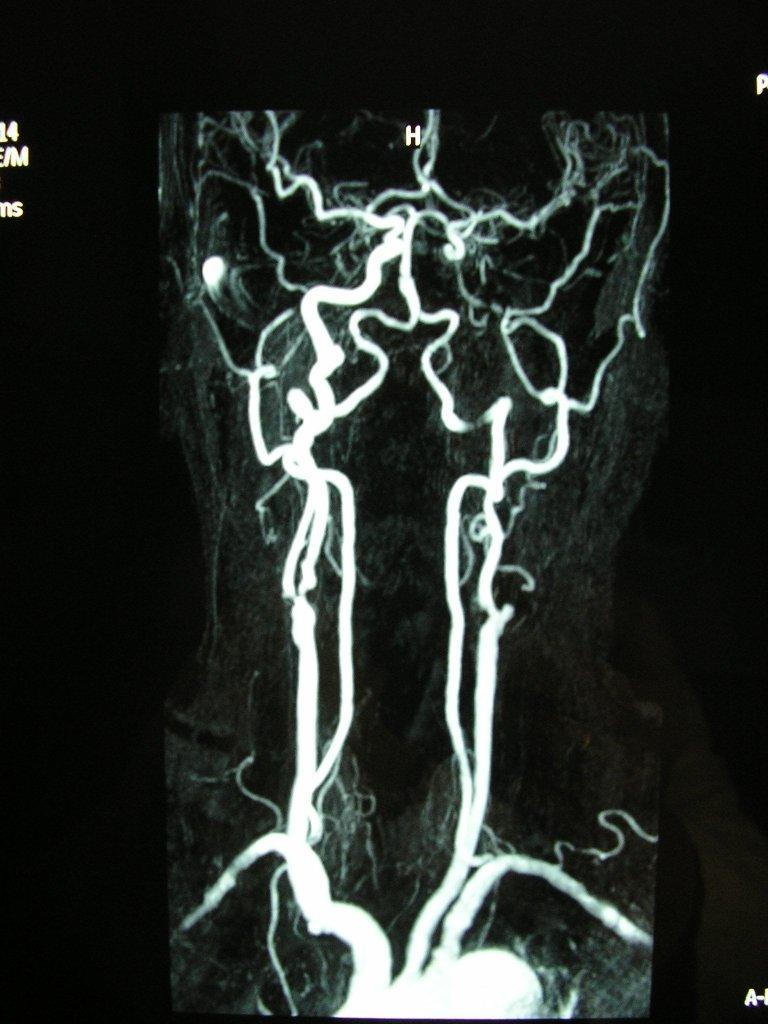 Qué es la Angio Resonancia (ARM)?